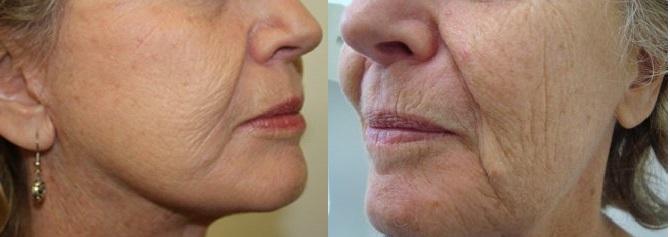 وصفة سحرية للتخلص من تجاعيد الوجه والرقبة في اقل من اسبوع