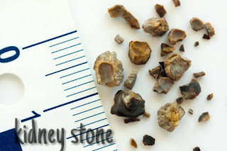 Kidney stone, The Different Types Of Kidney Stones and Symptoms