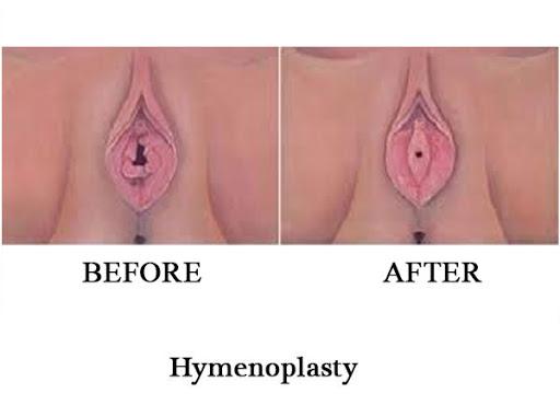 how to break hymen layer