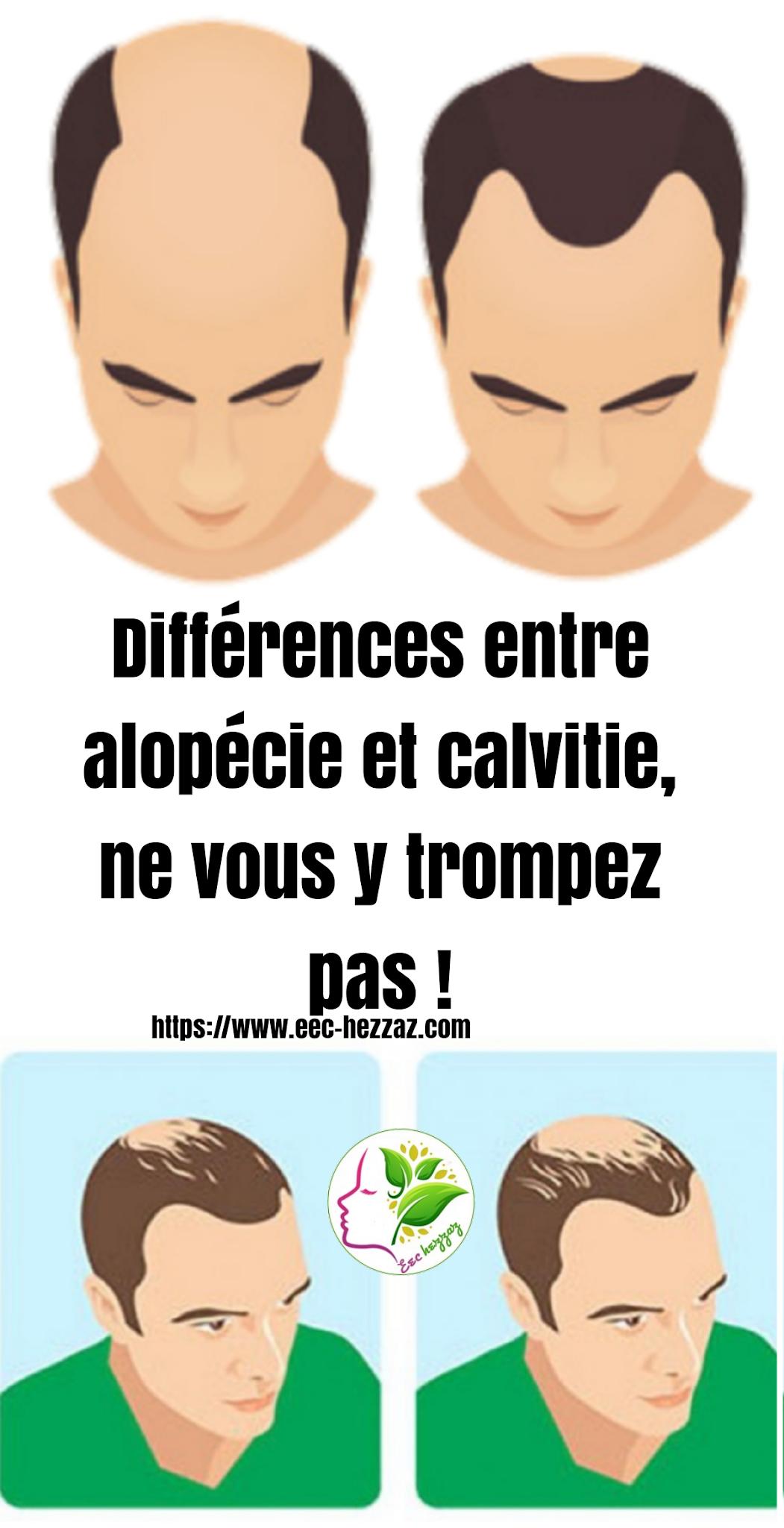 Différences entre alopécie et calvitie, ne vous y trompez pas !