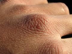blanquear la piel