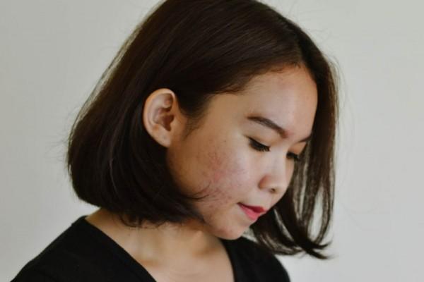 5 Alasan Usia Remaja Rentan Jerawatan, Bukan Hanya karena Hormon