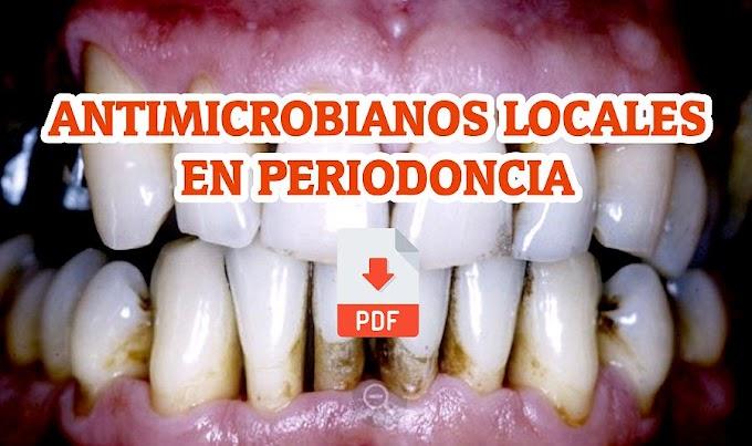 PDF: Antimicrobianos locales en Periodoncia