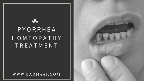[Pyorrhea] Pyria Treatment And Medicines In Homeopathy
