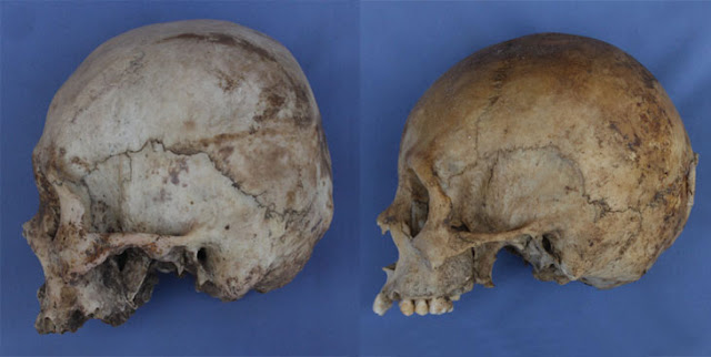 Infant skull binding shaped identity, inequality in ancient Andes