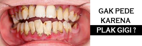 membersihkan plak gigi