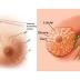 الفرق بين سرطان الثدي الحميد والخبيث