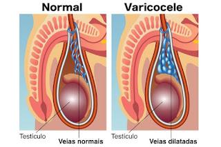 Obat Varikokel Testis dans obat herbal atasi varikokel pengalaman-operasi-varikokel