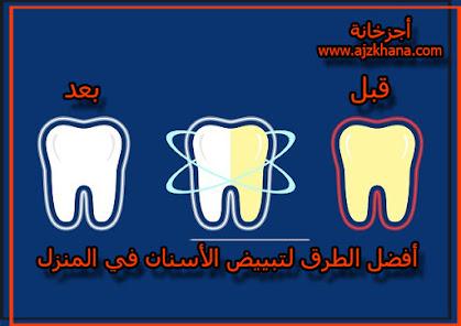 أفضل الطرق لتبييض الأسنان في المنزل