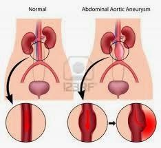 anévrisme aorte infirmier