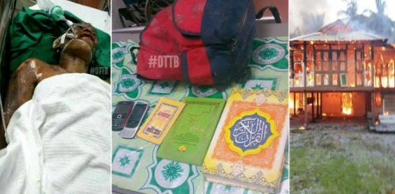 Lelaki Melecur Separuh Badan Demi Selamatkan Al-Quran Daripada Kebakaran