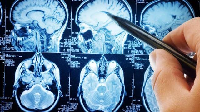 Η επίμονη αντικοινωνική συμπεριφορά μπορεί να σχετίζεται με διαφορές στη δομή του εγκεφάλου