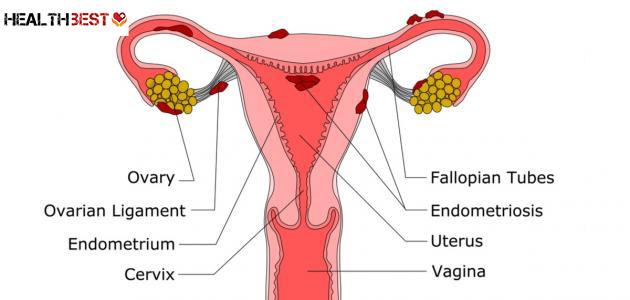 Migratory endometriosis and pregnancy