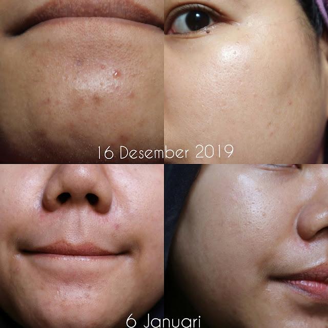 Skincare Korea Mengandung Niacinamide