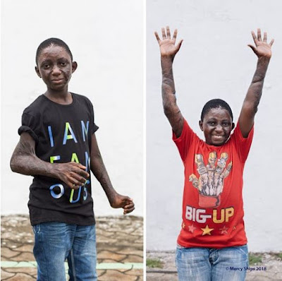 Free At Last!! Boy With Locked Arms Celebrates After Successful Surgery