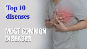 Top 10 most common diseases