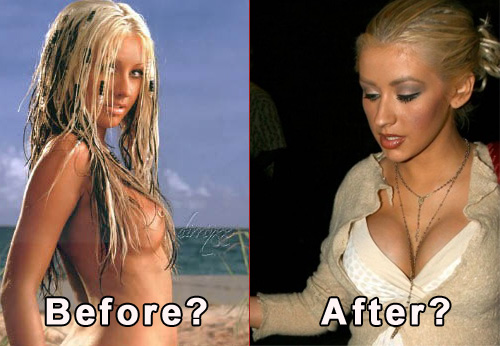 Christina model breast reduction
