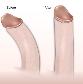 Is It Okay To Have Your Penis Bend Downwards During An Erection