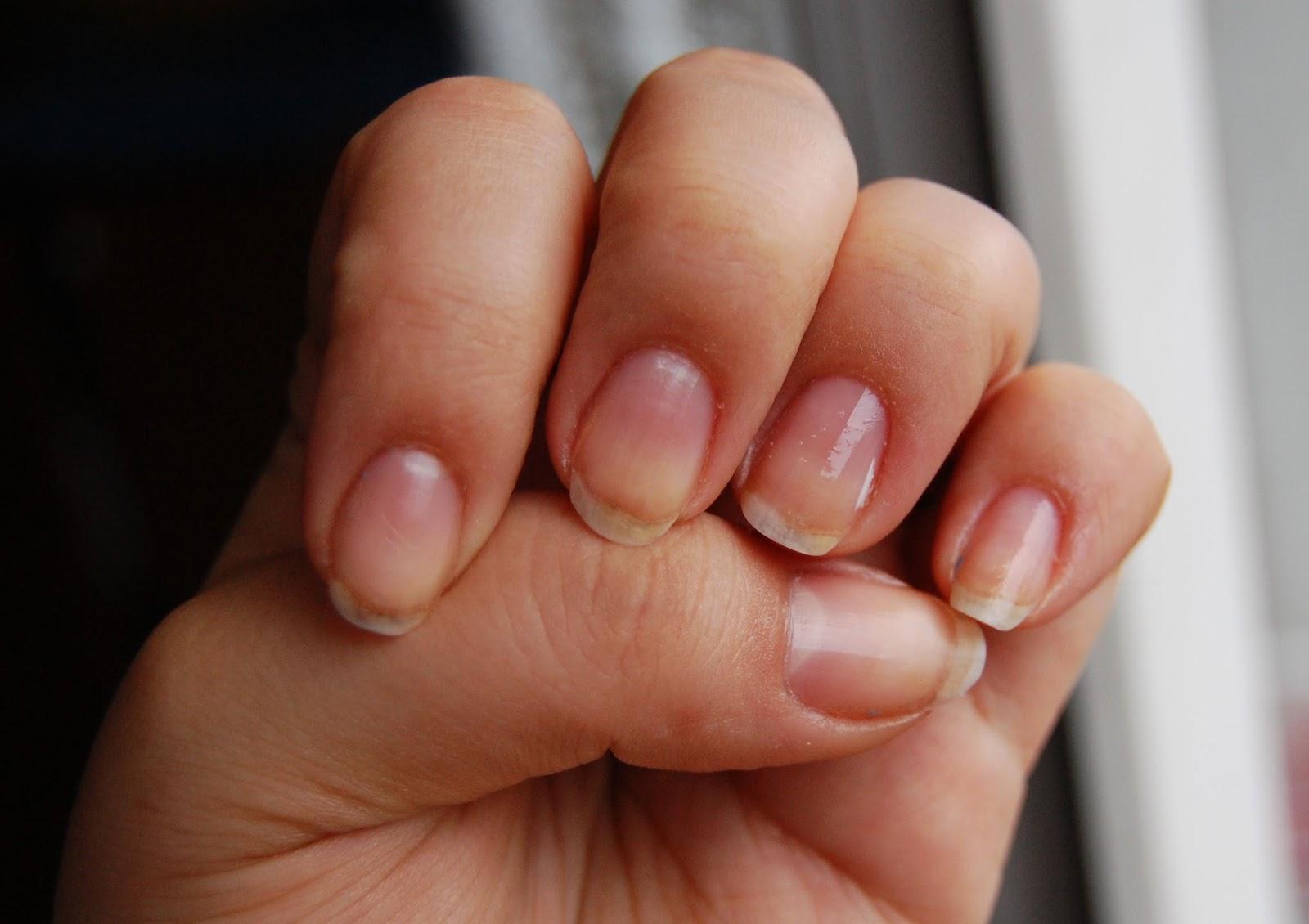 kuracja-nail-tek