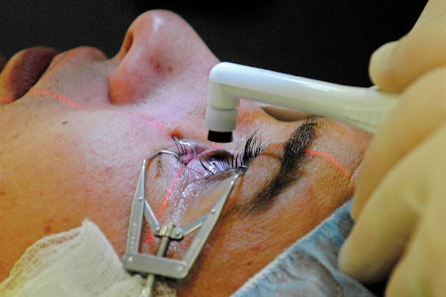 Lasik Eye Surgery - How to Choose Best Eye Surgery Hospital