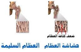 بحث حول مرض هشاشة العظام