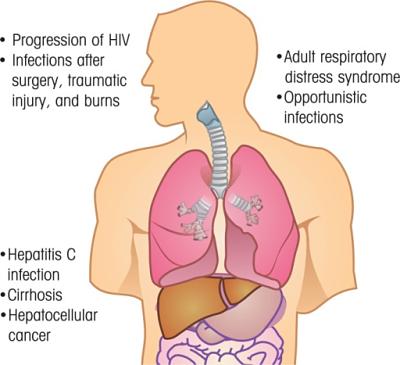 Hepatitis Aguda
