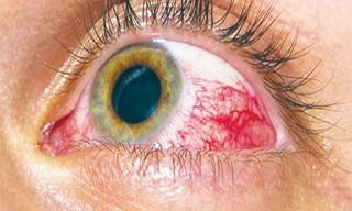 diyabetik retinopati gözde kanama