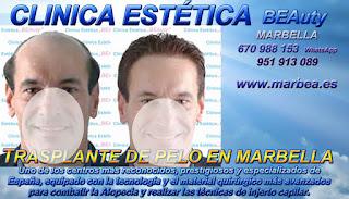 trasplante capilar Clínica Estética  trasplante pelo mujeres  o para hombres o en Marbella y Málaga: Te proponemos la mayor calidad de nuestroservicio con los mejores