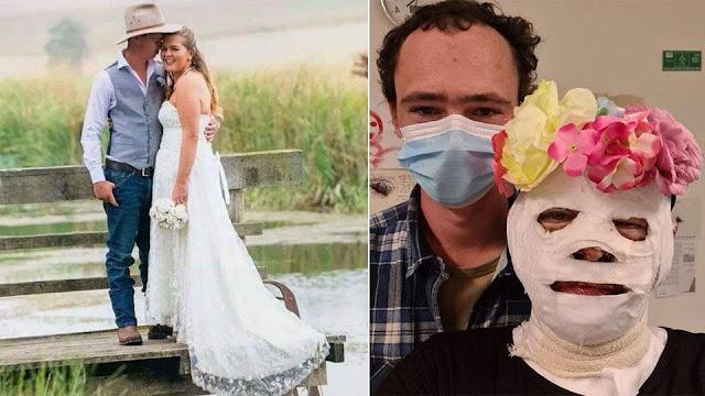 Не бросил: история девушки с обгоревшим лицом и ее мужа трогает за душу!