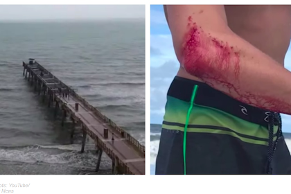 Two Men Attacked by Sharks At Same Time, On Different Florida Beaches
