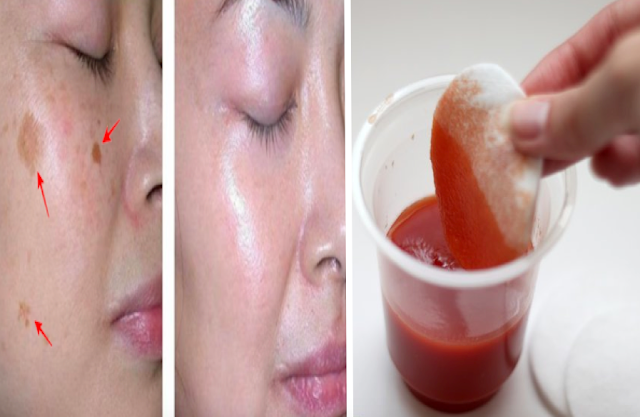 Say Goodbye to Wrinkles, Dark Spots and Acne Skin After Using This Effective Natural Method