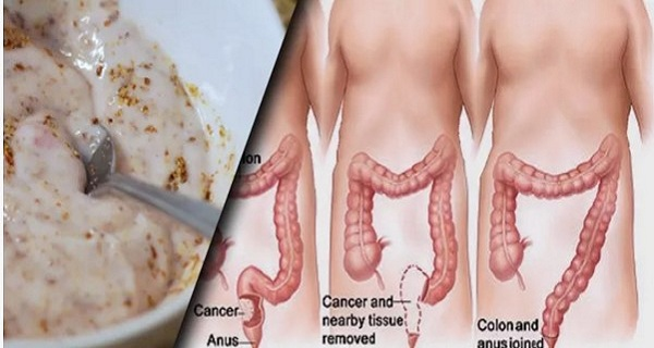 There Are Pounds of Waste and Toxins in Your Gut. This Method Will Give You a Complete Bowel Cleanse