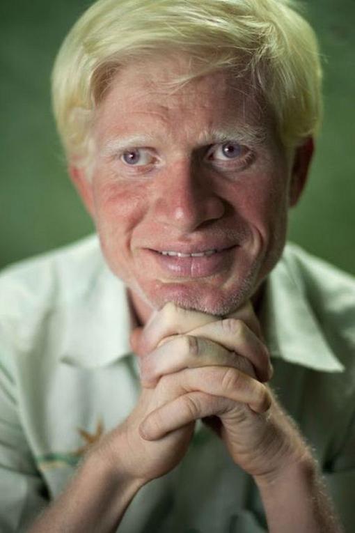 látvány emberek albínók