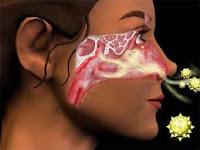 Ramuan penyakit rinitis | ramuan herbal hidung terasumbat