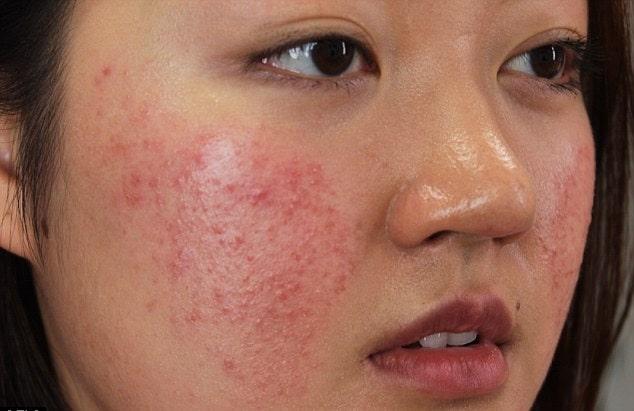 Hướng dẫn cấp cứu tại nhà khi da mặt bị dị ứng mỹ phẩm
