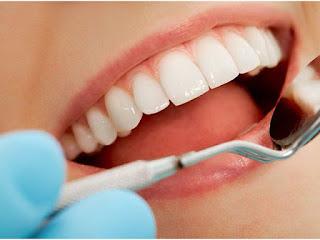 تكلفة تركيب الاسنان