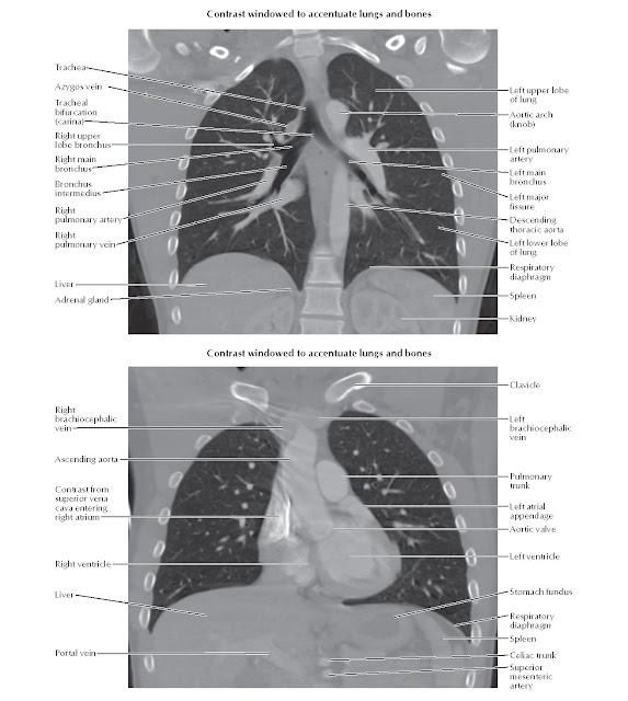 Thorax: Coronal CTs