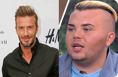 Man spends $26,000 on surgery to look like David Beckham
