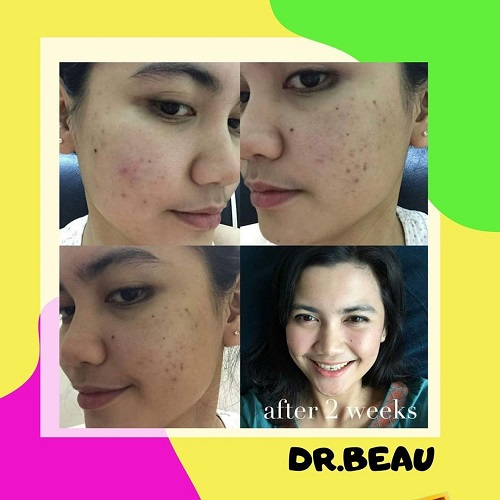feedback customer dr beau serum