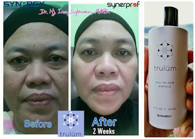 Jual Obat Penghilang Flek Hitam Trulum Skincare Sukamantri