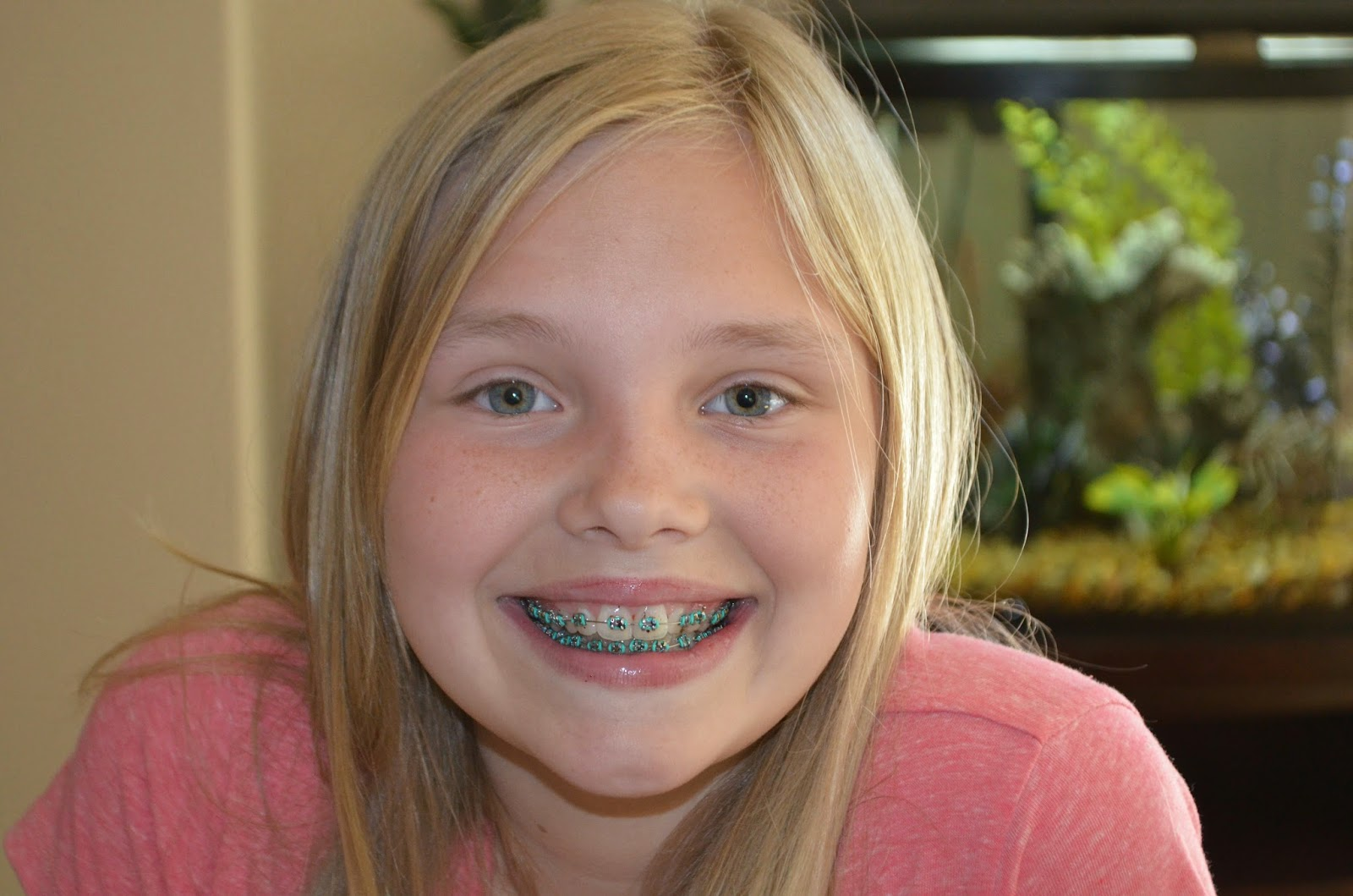 Braces Picture Galleries - AZ Gals. Free porn from A to