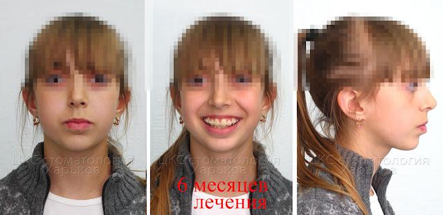 Лицо пациента лечение с удалением