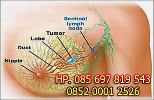 Cara Mengatasi Tumor Payudara yang paling Aman