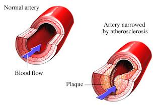 heart attack causes symptoms hindi   हार्ट अटैक की वजह