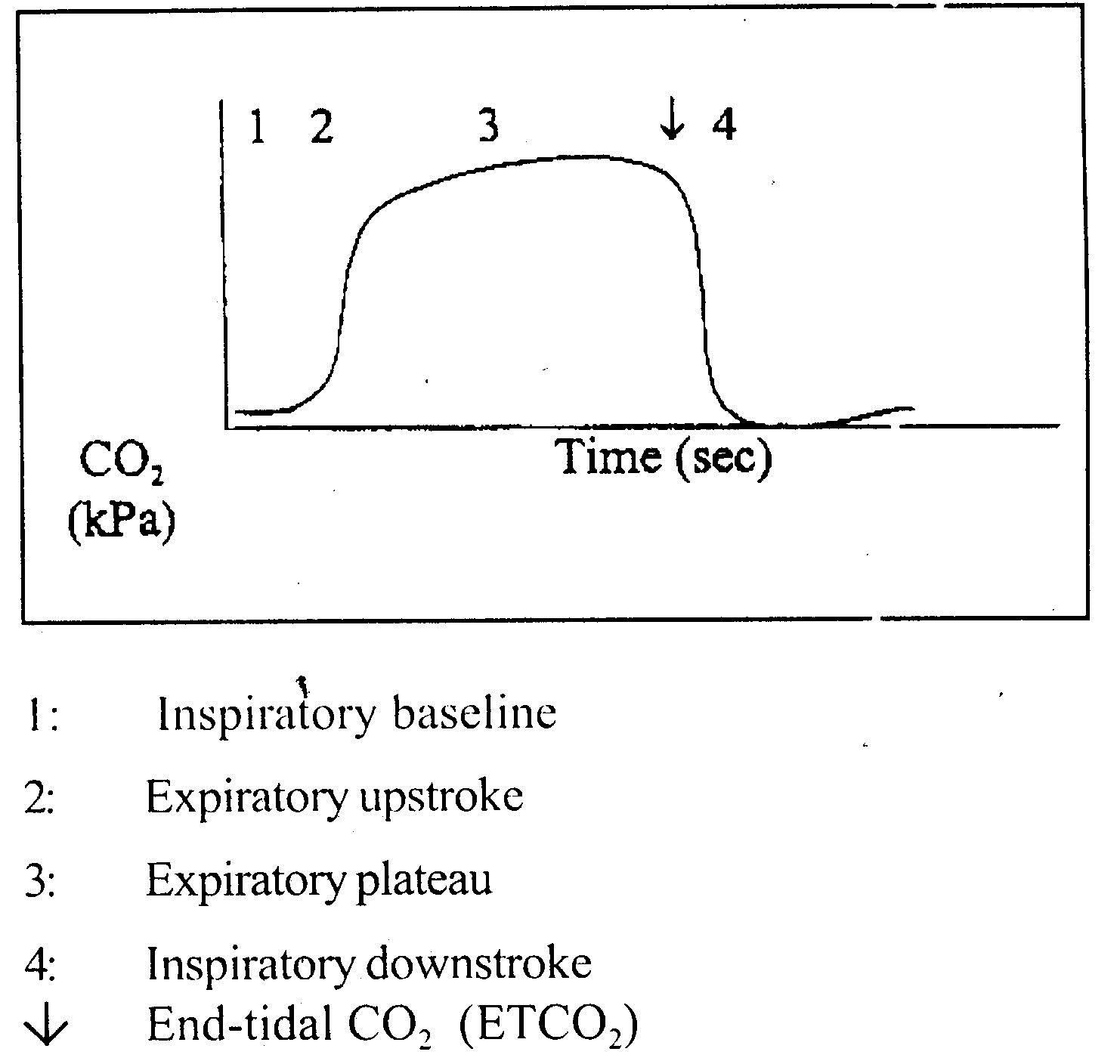 sikkahoder: Pemantauan sistem respirasi selama anestesi