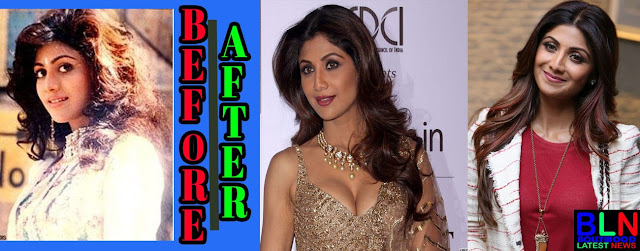 SHILPA SHETTY Bollywood Actresses Before and After Plastic Surgery