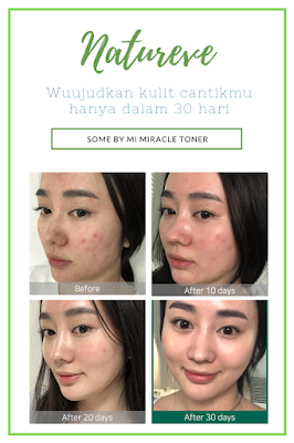 Some By Mi Miracle Toner aha bha pha testimoni