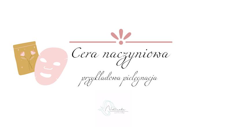 Cera naczyniowa - przykładowy plan pielęgnacyjny
