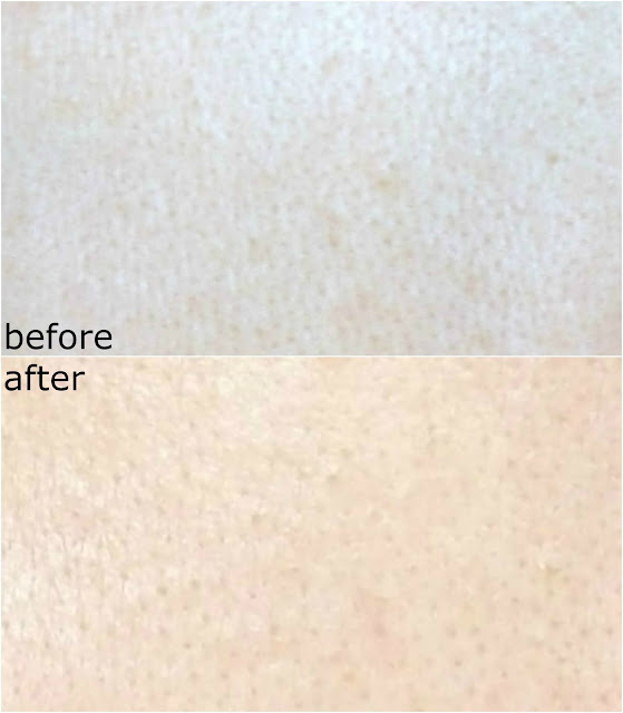 Before and after picture using CORSX Advanced Snail 96 Mucin Power Essence skin texture + large pores treatment