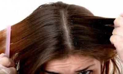 5 Rekomendasi Produk Pembasmi Kutu Rambut